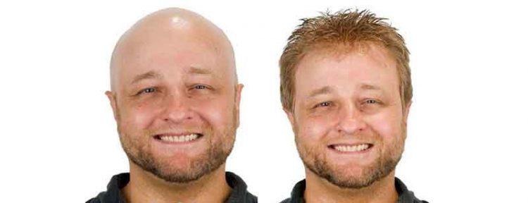 protesis capilar para hombre indetectable antes y después