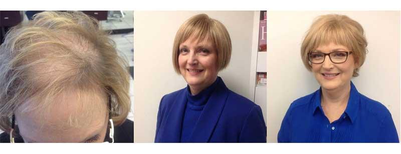 protesis capilar indetectable para mujer antes y después