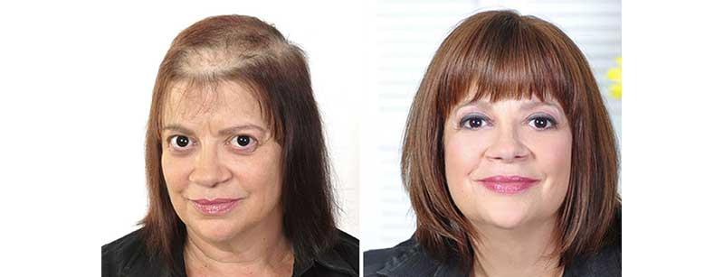 protesis capilar para mujer indetectable antes y después
